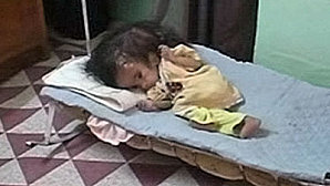 baby-fatimah-ahmed-born-with-two-heads-in-fallujah_jpe
