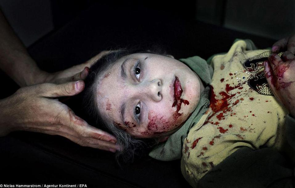 SYRIE la photo de l'année UNICEF Dania KILSI 11 ans blessée par un obus à ALEP