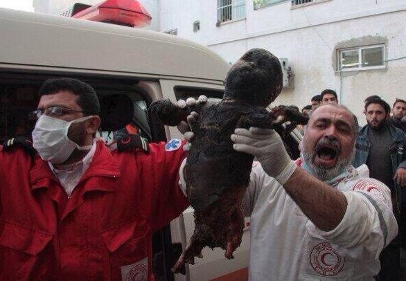 Bombardements sur GAZA Enfant mort brûlé à l'URANIUM APPAUVRI