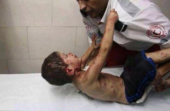 Enfant blessé à GAZA