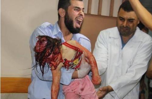 Enfant blessé dans hôpital à GAZA HORRIBLE