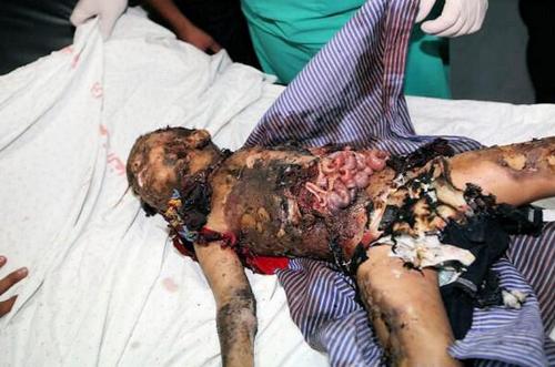 Enfant dépecé par une bombe à GAZA