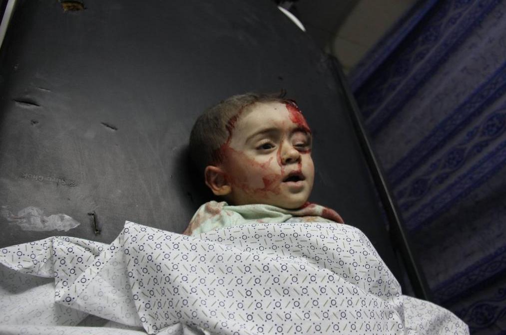 Enfant gravement blessé à GAZA