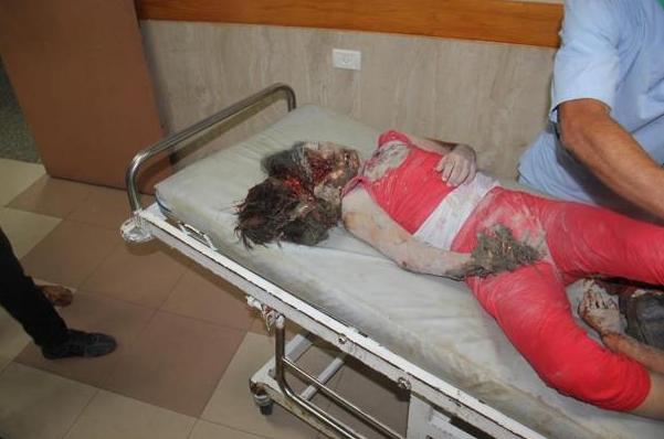 Enfant hôpital GAZA HORRIBLE
