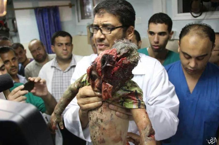 Enfant mort GAZA dans hôpital Une HORREUR