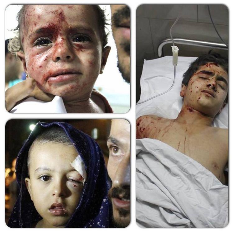 Enfants blessés à GAZA 1