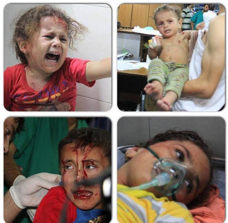 Enfants blessés à GAZA 2