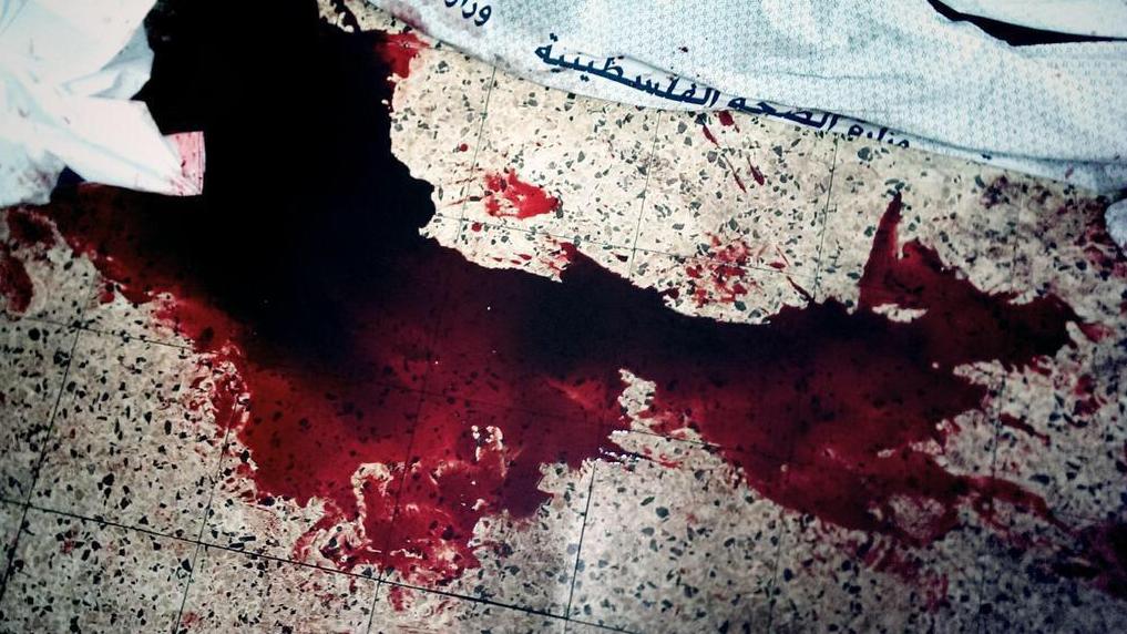 Sang sur le sol près d'un chariot GAZA