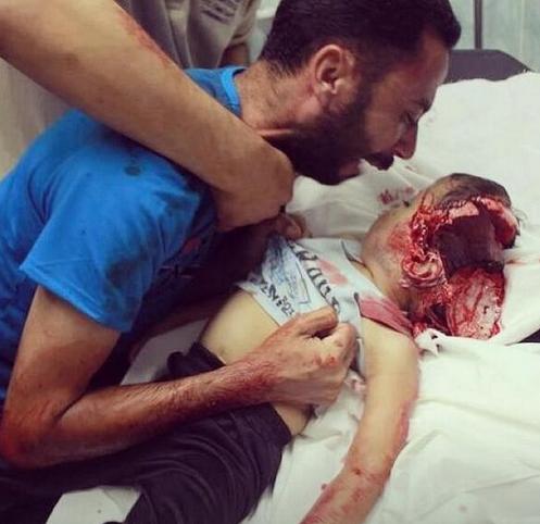 Tête enfant ouverte GAZA