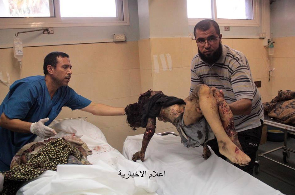 Un enfant très blessé HORRIBLE GAZA